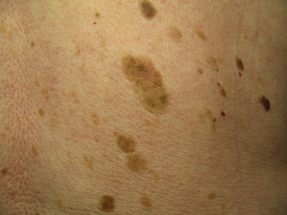Age Wart On The Body Marsden Skin Cancer Clinic