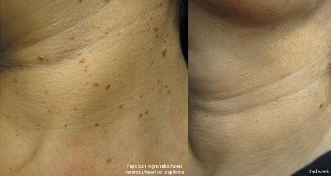 Wart Removal Marsden Skin Cancer Clinic