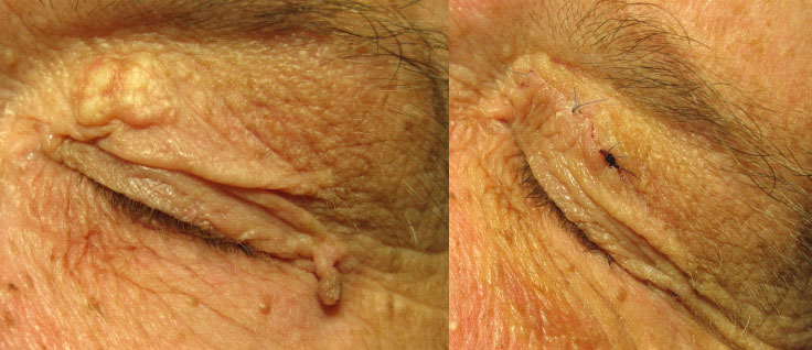 Age Warts Removal Marsden Skin Cancer Clinic